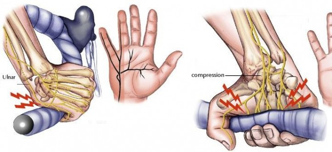 nervio ural manos dormidas